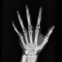 An X-ray of a hand with osteoporosis